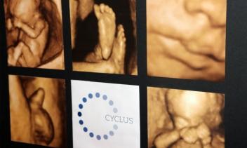 cyclusklinik_006C000000rfckt_kbh4